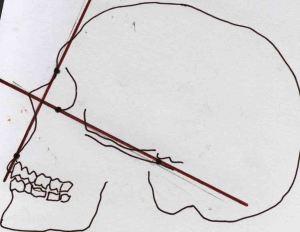 Atala Modern european angle facial