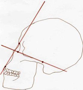 Atala Modern african facial angle