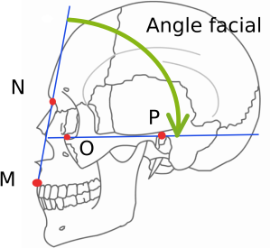 Atala Facial Angle measure