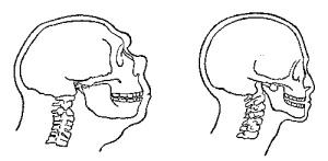 Atala Neanderthal occipital Foramen spine position